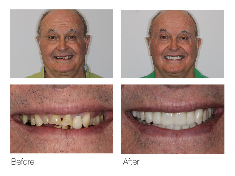 Before and After Cosmetic Dentist San Ramon