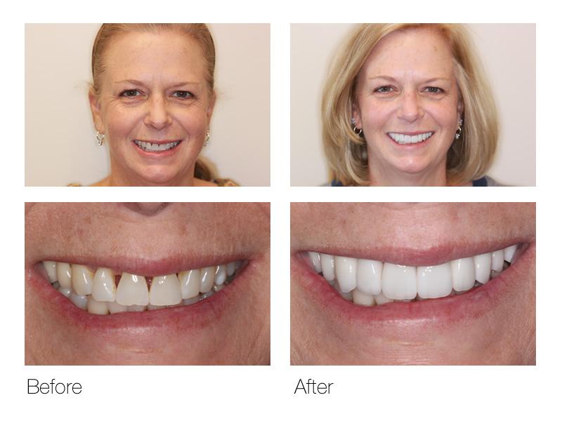 Cosmetic Dentistry in San Ramon