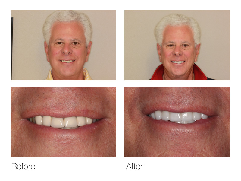 Dental Crowns San Ramon