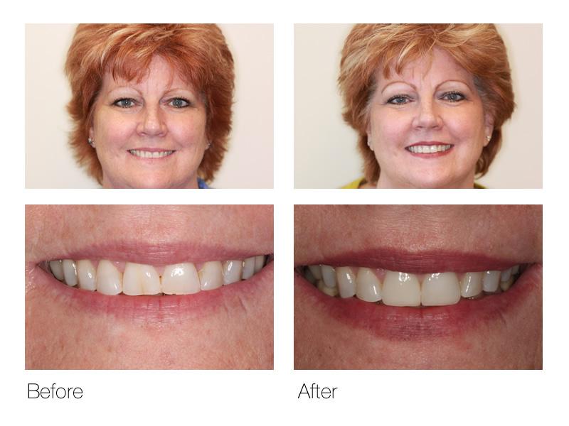 Cosmetic Dentistry San Ramon
