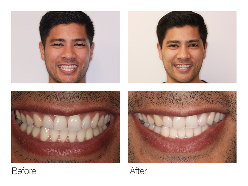 Cosmetic Dentist San Ramon BnA
