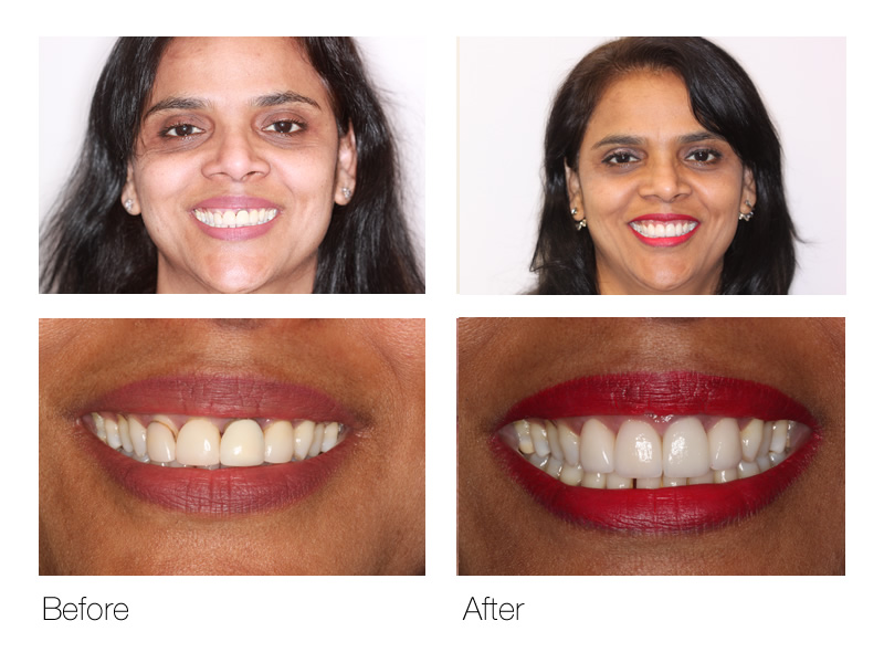 Dentist San Ramon Before & After Image
