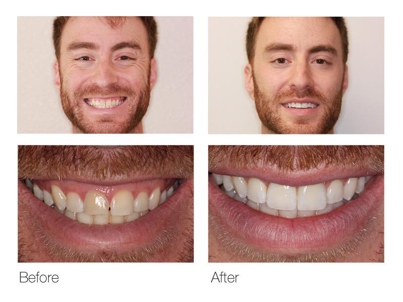 Dental Veneers San Ramon
