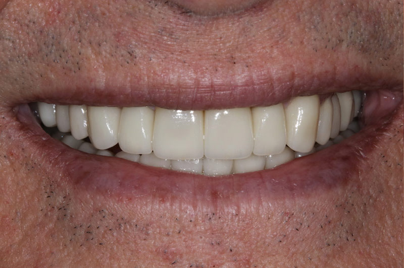 Natural Crowns After