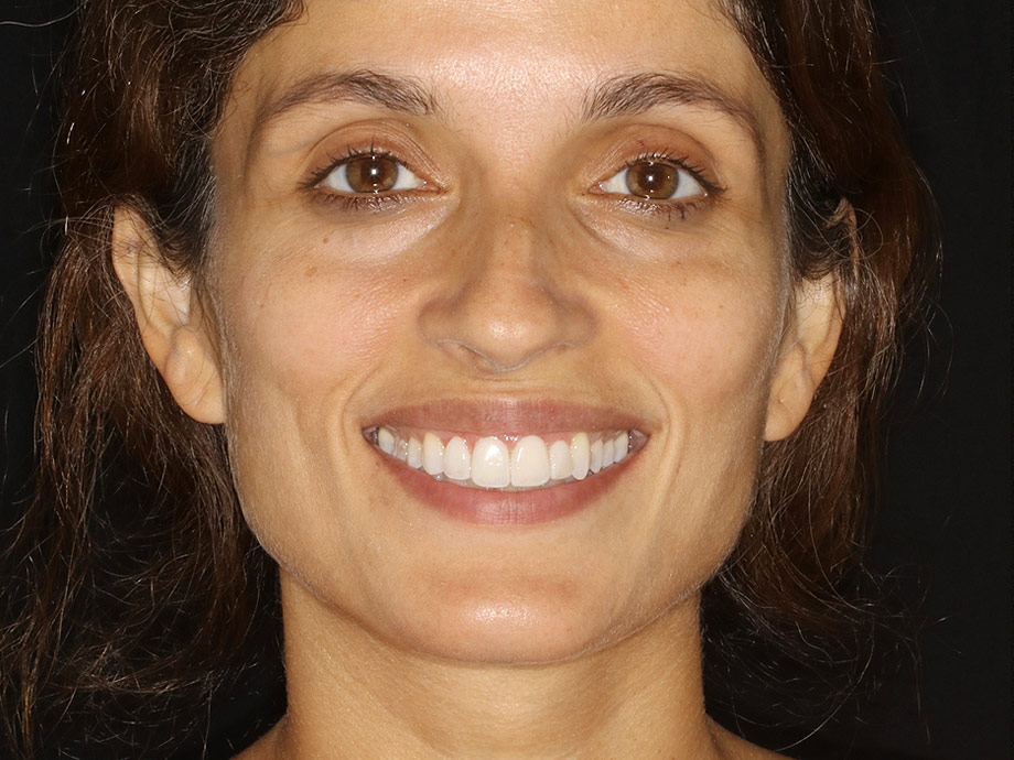 Composite Dental Veneers San Ramon After 1