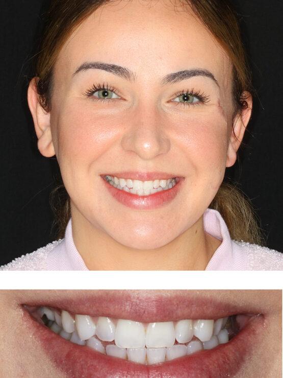 Composite Veneers San Ramon Woman Smiling